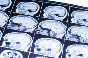 Brain Injuries from Car Accidents in New Jersey | Lombardi & Lombardi, P.A.
