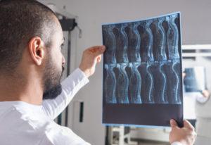 spinal cord injury lawyer edison nj